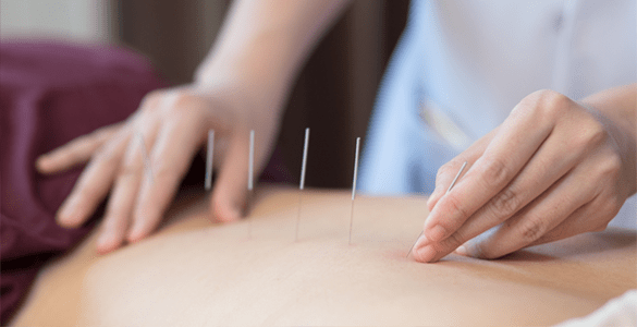 Acupuncture Mukilteo