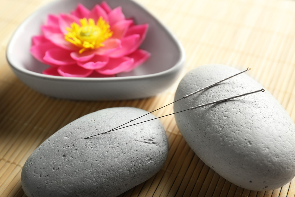 What to Know about Acupuncture in Marysville