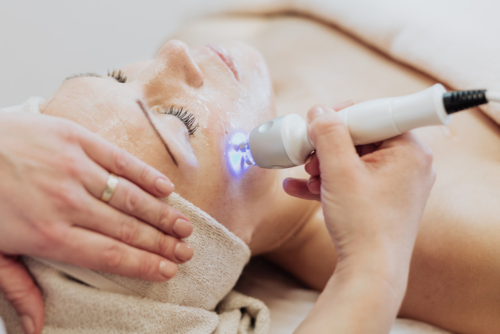 Laser Treatment for Hyper Pigmentation & Sun Spots in Lynnwood