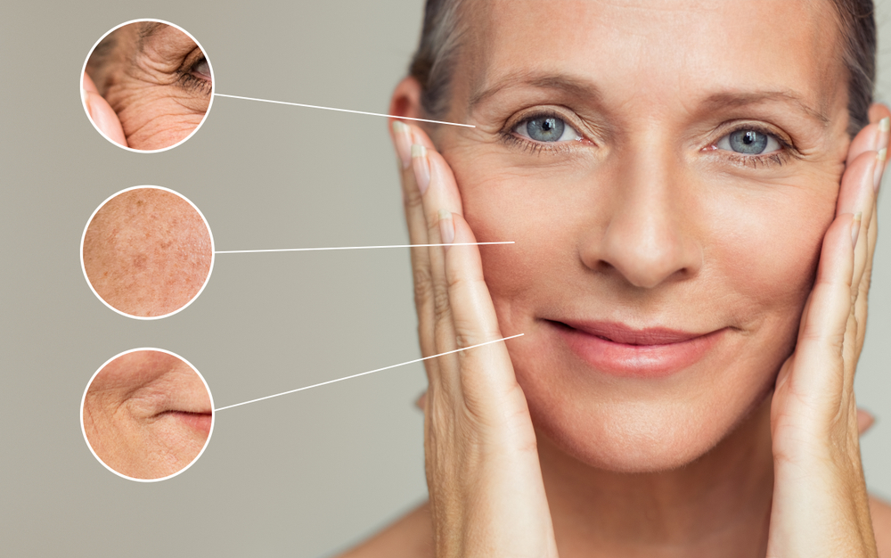 Get Rid of Fine Lines & Wrinkles with Laser Treatment in Lake Stevens