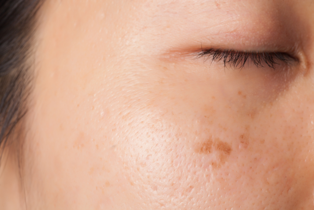 Get Rid of Sun Spots & More with Laser Treatment in Lynnwood