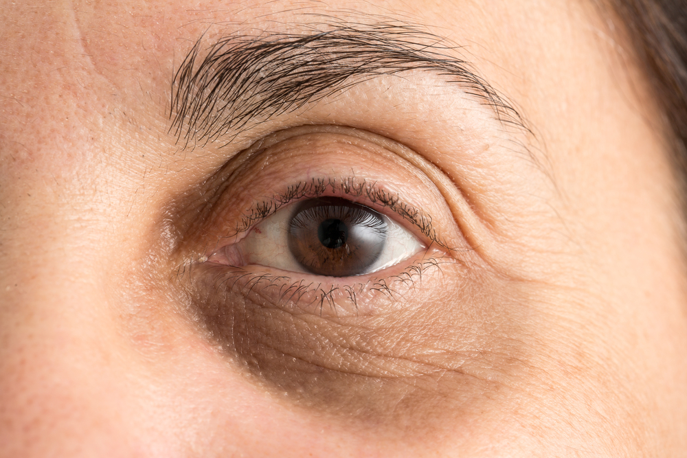 What Causes Dark Circles Under Your Eyes? Getting Treatment in Lake Stevens
