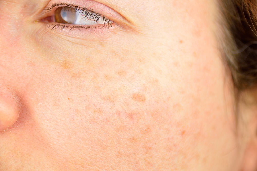 Get Blemish Free Skin with Laser Treatment in Marysville